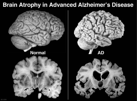 Patofisiologi dari Penyakit Alzheimer