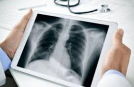 Kasus kanker paru meningkat seiring dengan adanya konsumsi rokok yang bertambah di masyarakat. Sebagain besar kanker paru mengenai pria.  Dari banyak penelitian diketahui bahwa kanker paru berkaitan dengan paparan atau inhalasi berkepanjangan zat-zat karsinogenik. Diketahui pula bahwa 1 dari 9 perokok berat akan menderita kanker paru. Perokok pasif pun berpotensi mengidap penyakit ini. Paparan asap rokok tidak hanya menyebabkan kanker paru, tapi juga kanker mulut, laring dan esofagus.  Selain asap rokok, zat karsionegik lain yang menyebabkan kanker paru adalah asbestos, radiasi ion pada pekerja tambang uranium, radon, arsen, kromium, nikel, polikistik hidrokarbon, vinill klorida.  Kasus kanker paru didapatkan lebih banyak pada daerah dengan kadar polusi udara tinggi.  Faktor genetik juga dipercayai para ahli berperan menimbukan kanker paru. Faktor nutrisi, yaitu kekurangan nutrisi betakaroten, selenium dan vitamin A meningkatkan resiko kanker paru.  Tanda & gejala kanker paru: •Tumor tumbuh pada area terbatas atau terlokalisir •Batuk baru atau batuk kronis •Hemoptisis •Wheezing atau mengi atau stridor karena obstruksi saluran nafas •Adanya kavitas, seperti abses paru •Atelektasis Tumor menginvasi area di sekitarnya (invasi local) menyebabkan gejala: •Nyeri dada •Dispnea, biasanya karena efusi pleura •Sindrom vena kava superior •Sindrom horner (facial anhidrosis, ptosis, miosis) •Sura serak, karena menekan nervus laryngeal recurrent •Sindrom Pancoast, terjadi karena invasi pada pleksus brakialis dan saraf simpatis servikalis Pemerisaan Rontgen dada postrior – anterior (PA) dan lateral dapat membantu mendeteksi kanker paru. Pemeriksaan radiologi lainnya yang bisa dilakukan adalah computer tomography dan magnetic resonance (CT Scan). Pemeriksaan ini lebih sensitive dibanding foto Rontgen. Pemeriksaan radiologis dapat mengukur memberikan gambaran ukuran tumor, kelenjar getah bening torakal, atau kemungkinan metastasis ke jaringan lainnya. Pemeriksaan bone scanning dilak