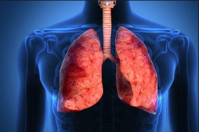 Patofisiologi penyakit kanker paru