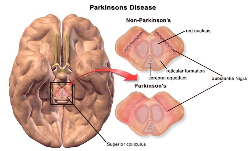 Patologi penyakit parkinson pada lansia