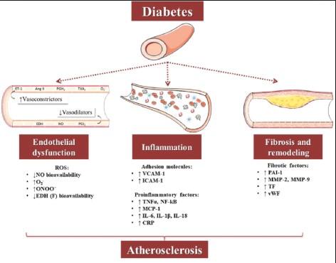Waspadai komplikasi jangka panjang diabetes melitus di tingkat mikrovaskular